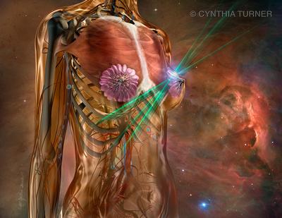 IMRT Breast Cancer Treatment