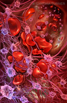 Activated Platelets in Atypical Hemolytic Uremic Syndrome (aHUS)