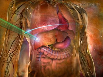 RapidArc Treatment of Hepatic Cancer