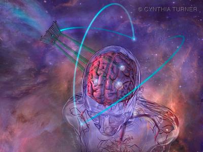 SBRT Treatment of Multiple Metastases in the Brain