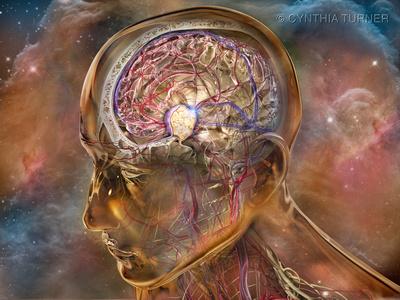 Cerebral Meningioma