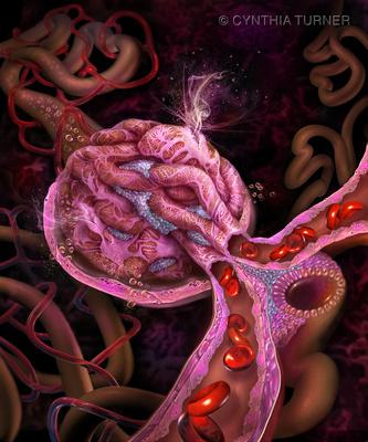 Diabetic Glomerulus